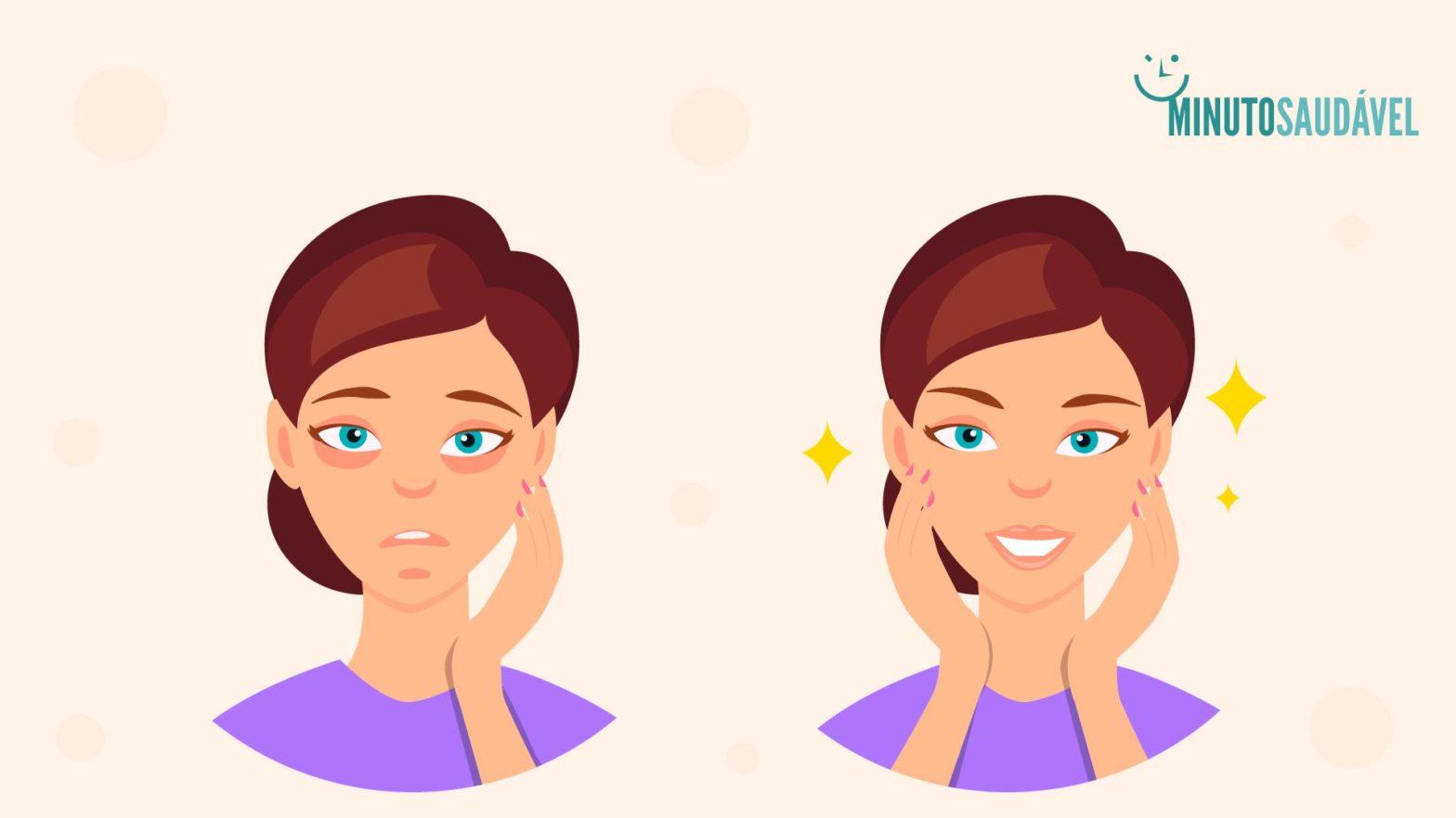 como se livrar de olheiras sob os olhos de alergias