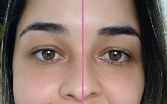 imagem com foco na região dos olhos, mostrando o antes e depois do sérum Max Love