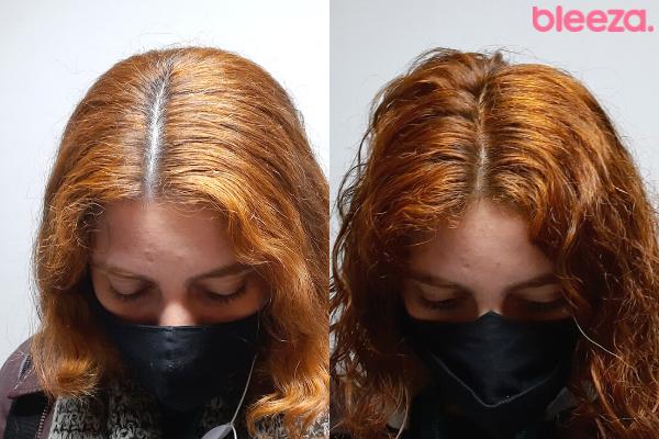 Antes e depois máscara cobre effect Amend